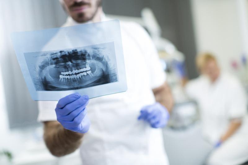 leczenie zębów zatrzymanych