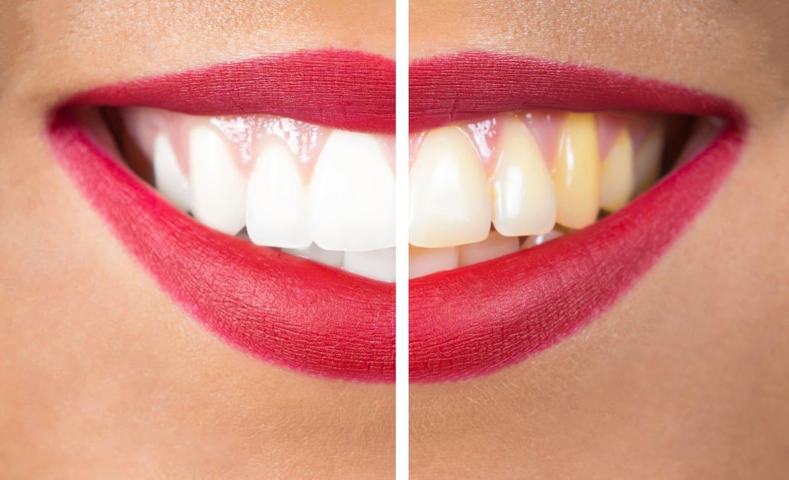 przebarwienie zębów
